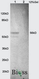 bs-1535R - Alkaline phosphatase / ALPL