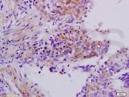 bs-1570R - Apolipoprotein H (Apo H)
