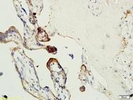 bs-1587R - Coagulation factor XIIIa (F13A1)