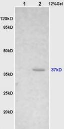 bs-1670R - Cathepsin H