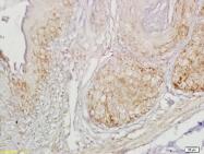 bs-1777R - Gastrin-releasing peptide receptor