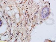 bs-1792R - Cytokeratin 14+17+42+10