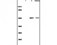 bs-1796R - Glucokinase / Hexokinase-4