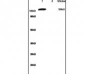 bs-1803R - mGluR1a / GRM1a