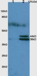 bs-1808R - Haptoglobin