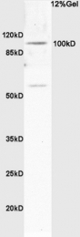 bs-1905R - Synphilin 1 / SNCAIP