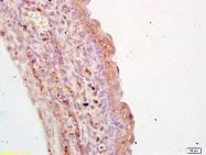 bs-1911R - Transglutaminase-3 (TGM3)