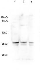 bs-2423R - DLK1