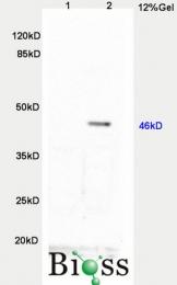 bs-2441R - TWIST1