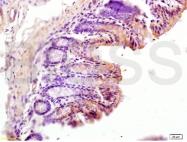 bs-2527R - CD163