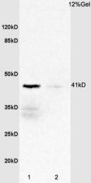 bs-2545R - CD132 / IL2RG