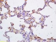 bs-2808R - Tyrosine-protein kinase JAK3