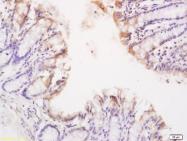 bs-2941R - CD120a / TNFR1