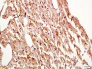 bs-2965R - Myosin-XVIIIb