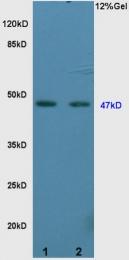 bs-2987R - Vitamin D3 receptor / NR1I1