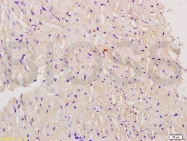 bs-3805R - Myoglobin