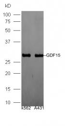 bs-3818R - GDF15