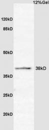 bs-3822R - Cyclin G2
