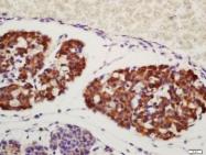 bs-3847R - Amphiregulin