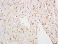 bs-3888R - Complex I subunit NDUFS3