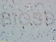 bs-4212R - Neuroligin 1