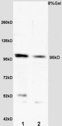 bs-4228R - VLDL-R / VLDL receptor