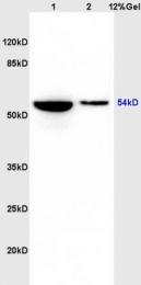 bs-4692R - GSK3 alpha