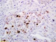 bs-4727R - CD206 / MRC1