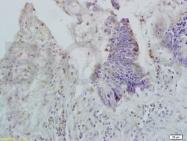bs-5034R - Apolipoprotein A II (Apo AII)
