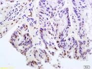 bs-5360R - Histone H2A.x