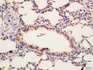 bs-5453R - CD220 / INSR