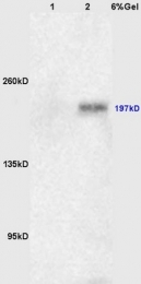 bs-5456R - CD104 / Integrin beta-4