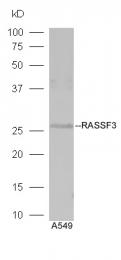 bs-6078R - RASSF3