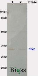 bs-6083R - ANP32A