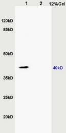 bs-6200R - ZDHHC9