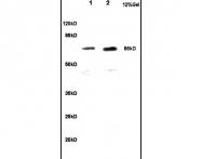 bs-6520R - CKAP4