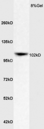bs-6651R - APOER2 / LRP8