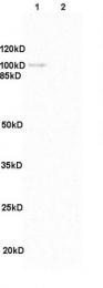 bs-6720R - Alpha-glucosidase 2  / GANAB