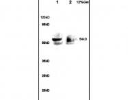 bs-6772R - Alpha-1B-glycoprotein / A1BG