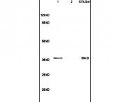 bs-7835R - BUB3