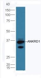 bs-8074R - ANKRD1