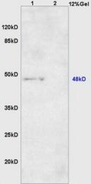 bs-8075R - ARRDC1