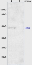 bs-8525R - DNA polymerase beta