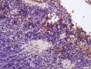 bs-9889R - Hemoglobin alpha