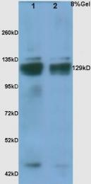 bs-2715R - Thrombospondin-1 (THBS1)