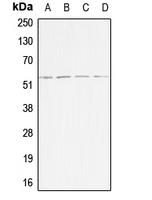 CPA1014-100ul - Activin receptor type 1B / ACVR1B