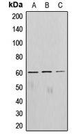 CPA1037-100ul - AKT1 / PKB