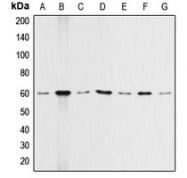 CPA1038-100ul - AKT1 / PKB