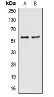 CPA1040-100ul - ALDH2