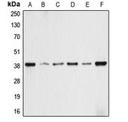CPA1044-100ul - Aldolase A / ALDOA